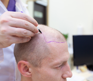 Hair Trasnplant
